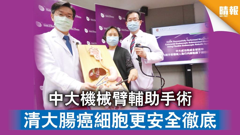 中大機械臂輔助手術 清大腸癌細胞更安全徹底