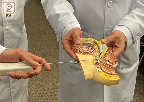 傳統活檢程序會令病人感到不適,甚至小便流血。(陳彥婷攝)