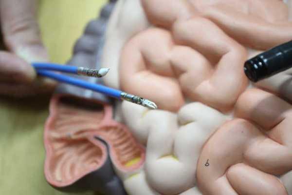 內鏡手術機械人進行內鏡黏膜下剝離術治大腸癌