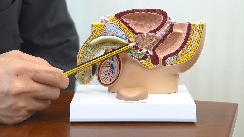 前列腺位於膀胱與尿道之間,所分泌的前列腺液與精子混和後,成為精液。 何立言醫生指,前列腺癌有兩大風險