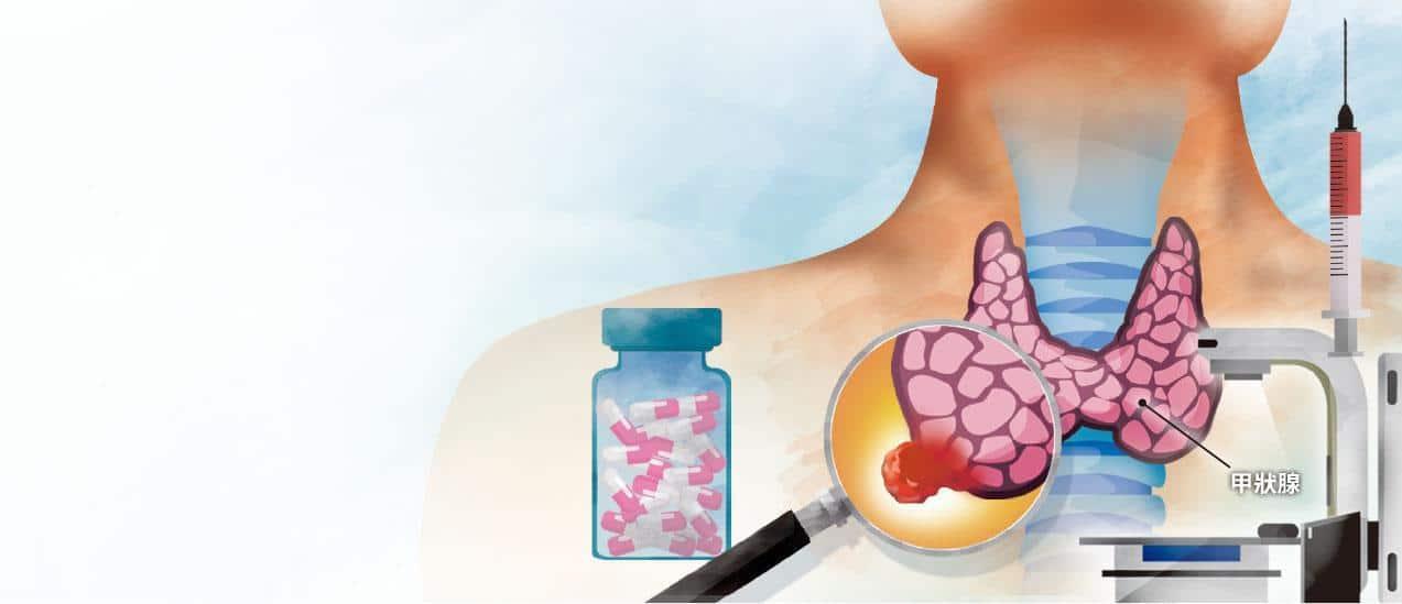 晚期甲狀腺癌患者可考慮做基因分析