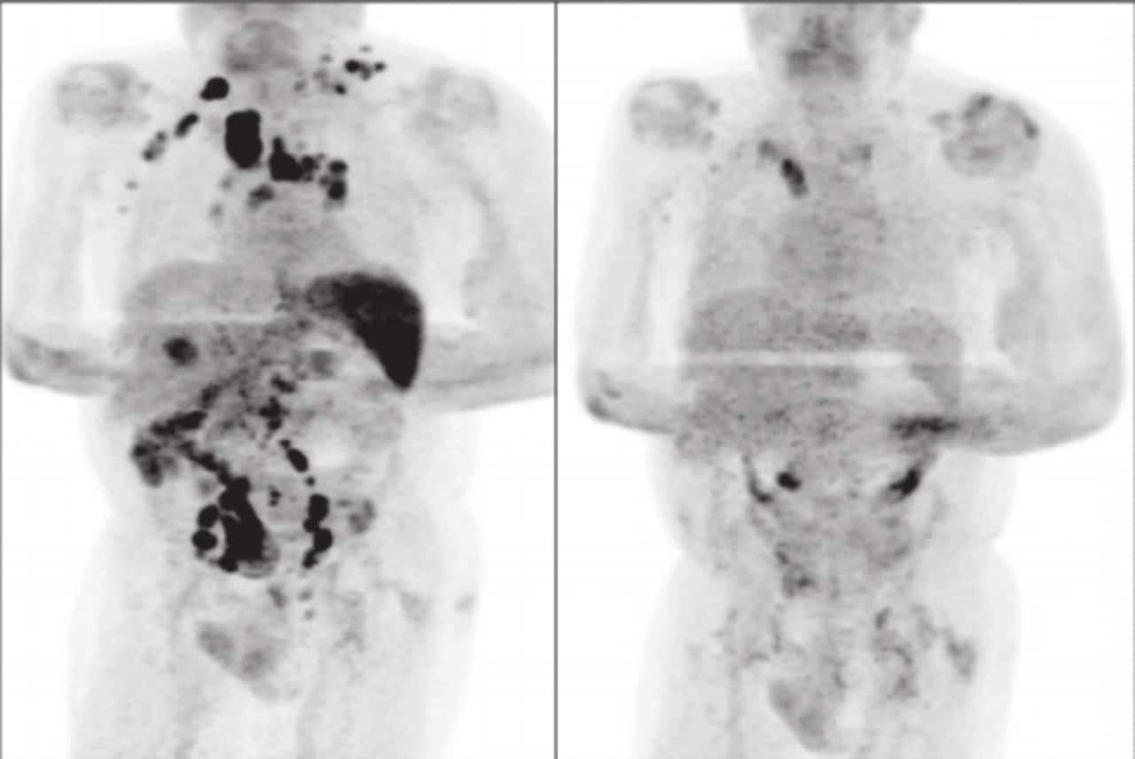 感染新冠肺炎前的掃瞄影像右為染疫後影像