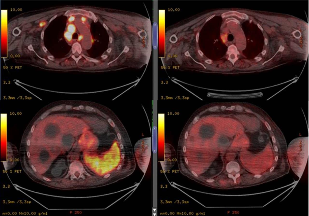 感染新冠肺炎前的掃瞄影像