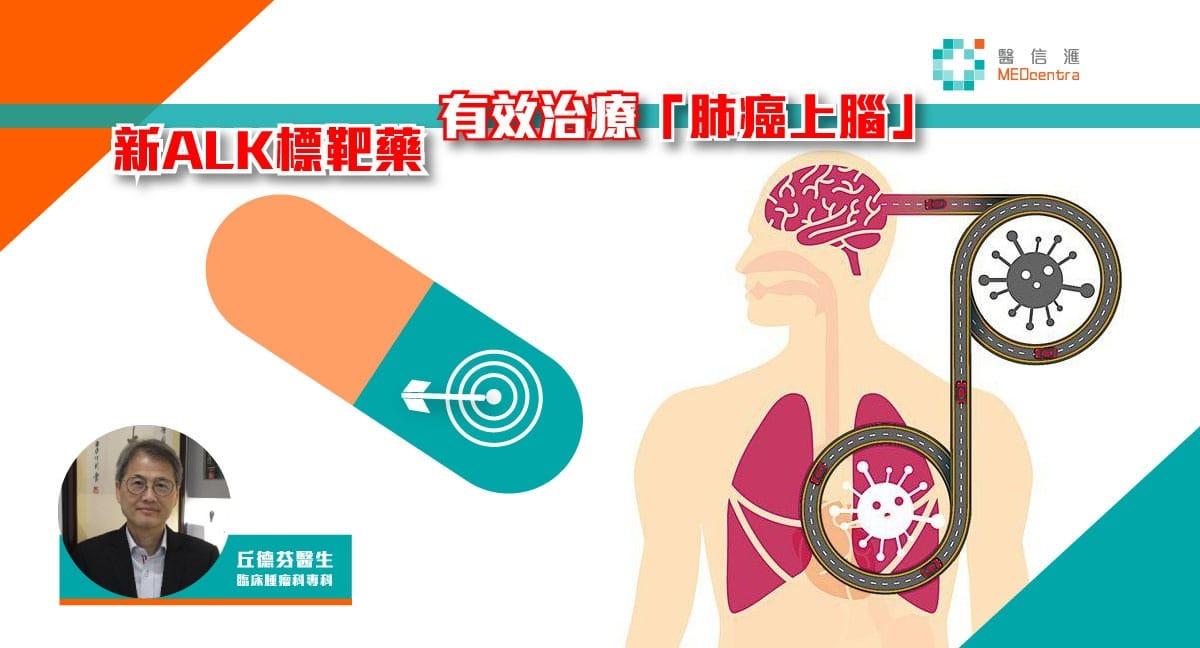 新ALK標靶藥 有效治療「肺癌上腦」