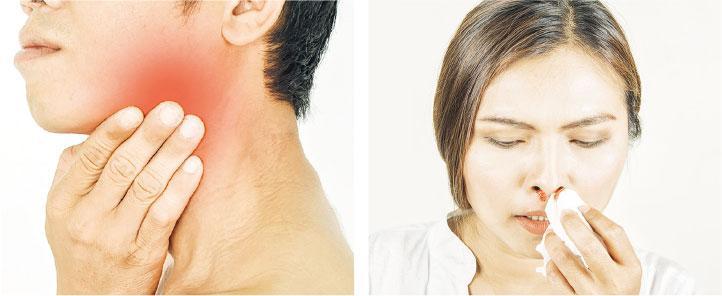 病人頸側淋巴結脹大及無故流鼻血