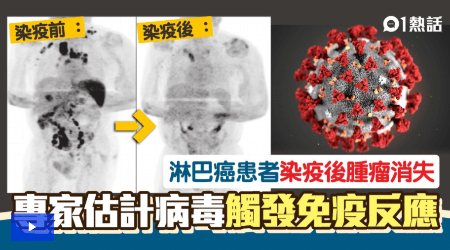 確診新冠肺炎後腫瘤竟離奇消失