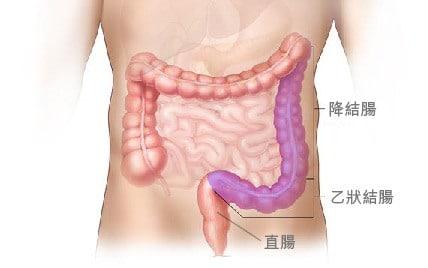 降結腸 乙狀結腸 直腸