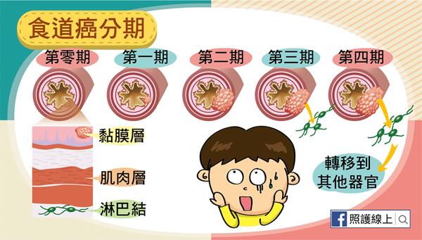 食道癌分期