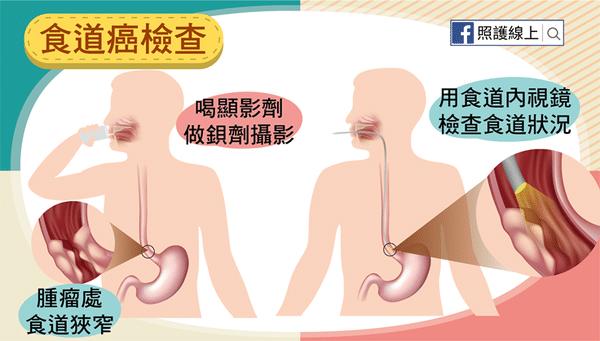 食道癌檢查